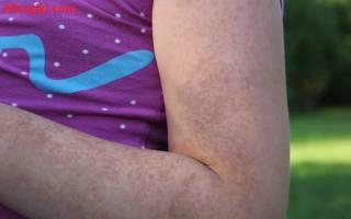 Чем лечить кожную аллергию