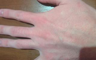 Аллергия в картинках