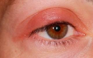 Дерматит на глазах