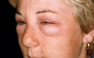 Аллергия глаз как лечить