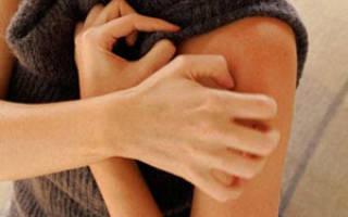 Разрешенные продукты при аллергии