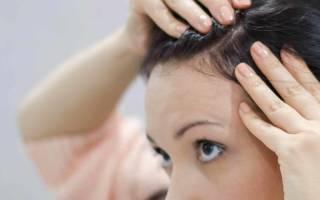 Аллергия после окрашивания волос