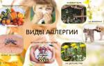 Аллергия у детей в картинках