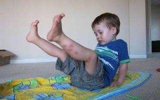 От укусов комаров для детей