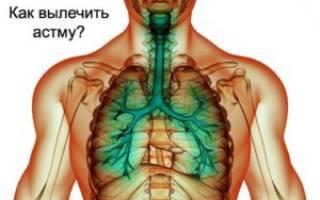 Бронхиальная астма лечиться или нет