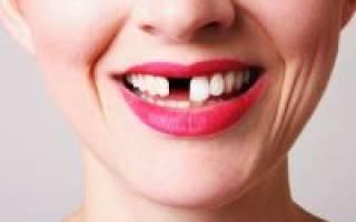 Почему выпадают зубы?