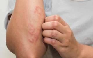 Когда нужно сдавать анализы на аллергию?