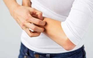 Сыпь на руках аллергия