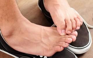 Чем лечить нейродермит на ногах