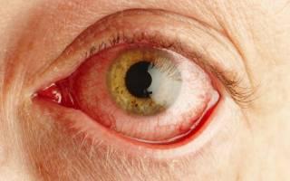 Аллергический конъюнктивит фото