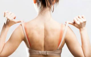 Аллергия на одежду симптомы