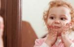 Мази при диатезе у детей