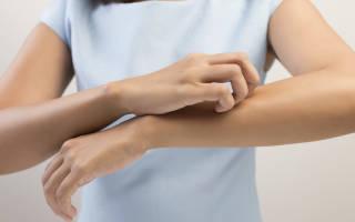 Аллергический зуд по всему телу – как избавиться?