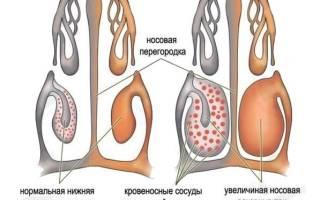 Как определить аллергический насморк