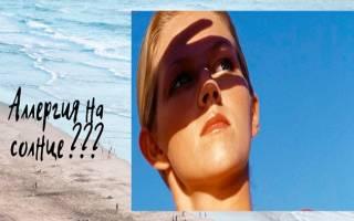 Солнечная аллергия лечение