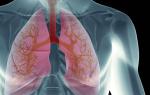 Аллергия переходящая в астму