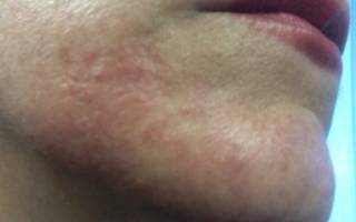 Кожные заболевания на нервной почве