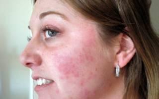 Аллергия пятна на лице