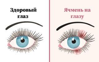 Ячмень на глазу: причины и способы лечения