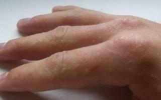 Волдыри между пальцами рук