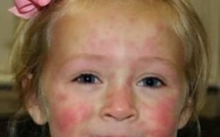 Как лечить крапивницу у ребенка