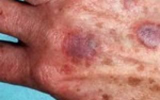 Аллергический васкулит лечение