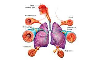 Атопическая бронхиальная астма