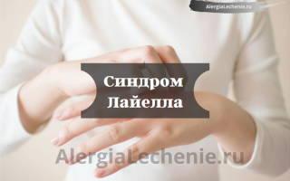 Синдром лайелла лечение