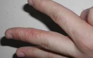 Сыпь на пальцах рук