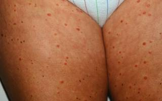 Чем лечить каплевидный псориаз